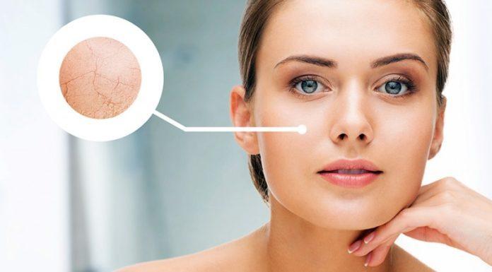 Da khô rất dễ bị lão hóa. (Nguồn: Internet)